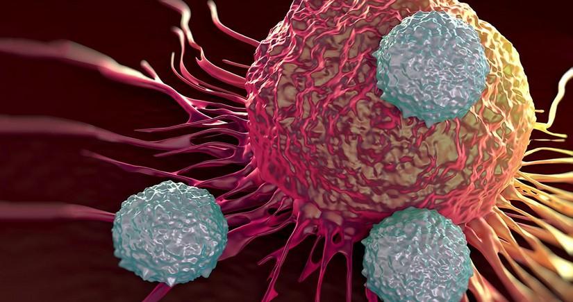 Раскрыты основные симптомы одного из самых распространенных видов рака