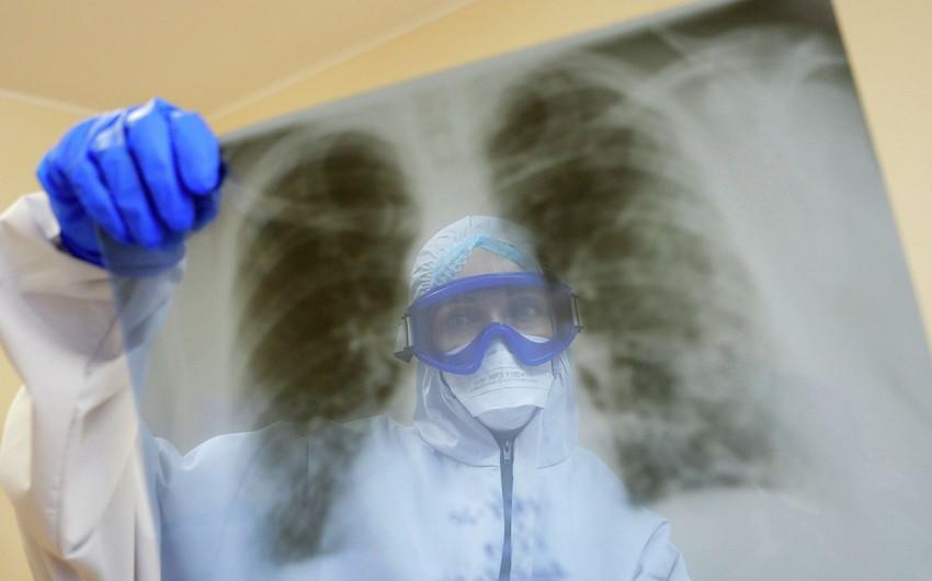 Bronxial astma koronavirusa yoluxma riskini azaldır