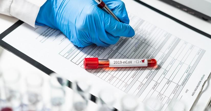 Azərbaycanda nazir koronavirusa yoluxub