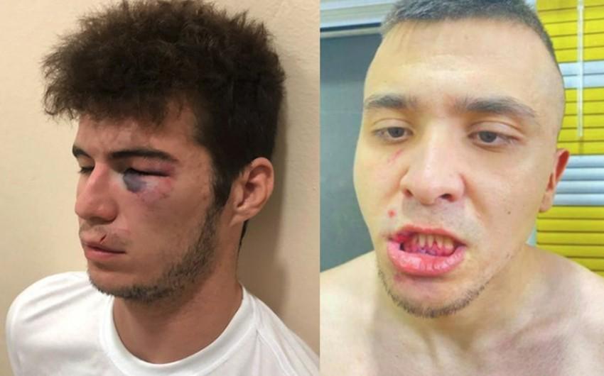 Özbəkistan klubunda insident: Pullarını tələb edən oyunçular döyülüblər