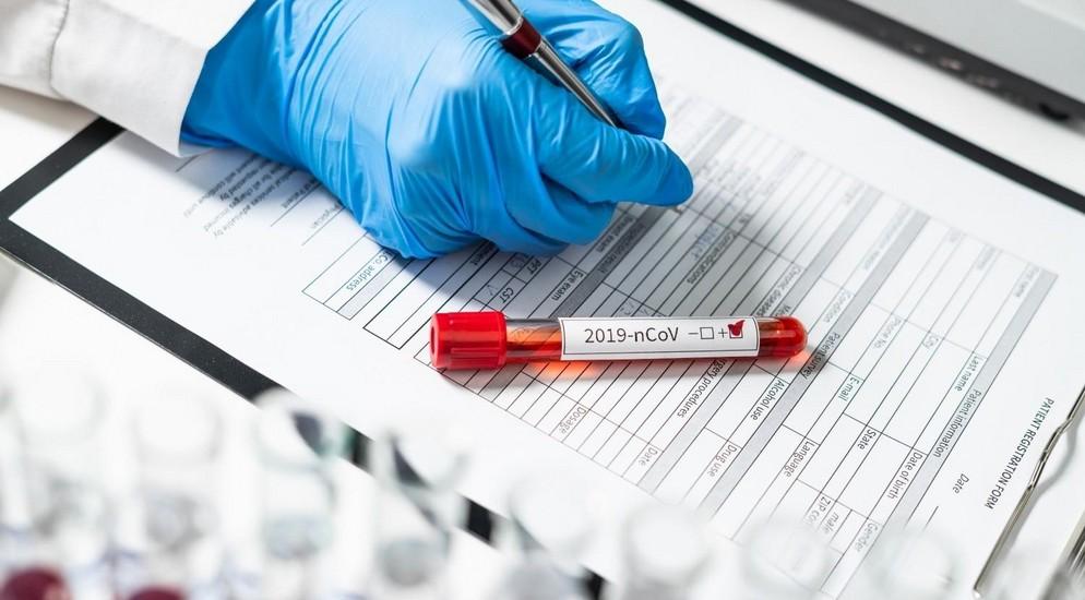 В США за сутки коронавирусом заразились рекордные 63,2 тыс. человек