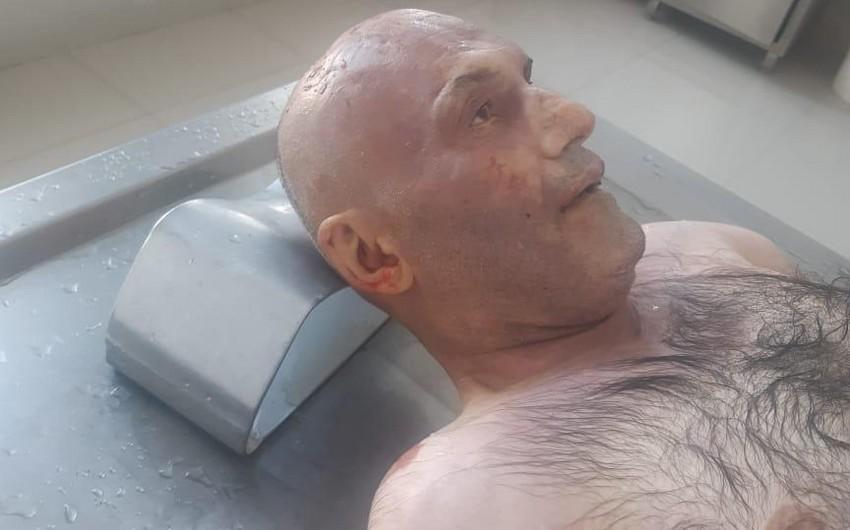 Bakıda avtomobillə vurularaq öldürülən naməlum kişi meyiti aşkarlanıb - FOTO