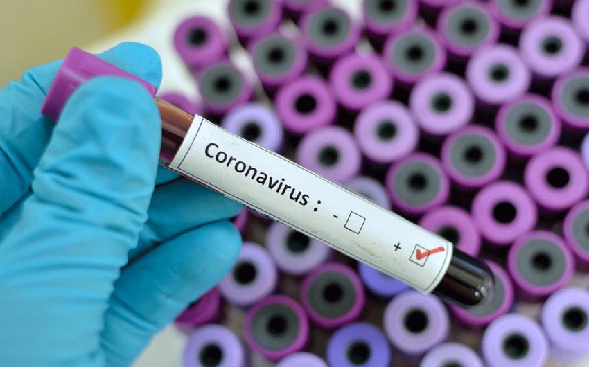 Bir gündə 9 koronavirus xəstəsi saxlanılıb