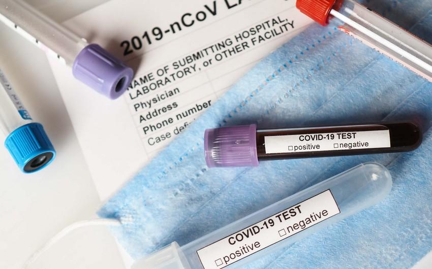 Azərbaycanda koronavirusa 287 yeni yoluxma qeydə alınıb, 10 nəfər vəfat edib
