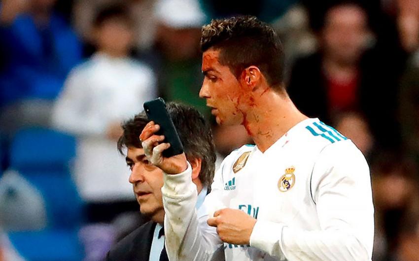 Futbol üzrə İspaniya çempionatının oyununda Ronaldunun qaşı yarılıb