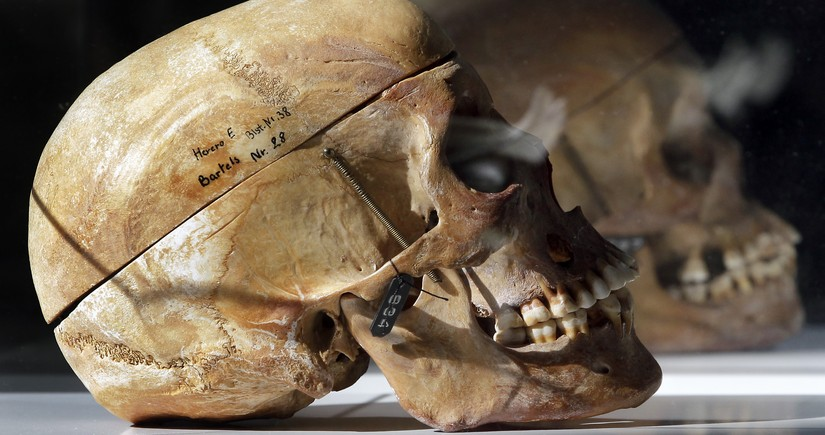 Европейские музеи, в которых экспонируются черепа