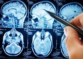 Scientists discover cellular hotspots in brain signifying earliest signs of cancer