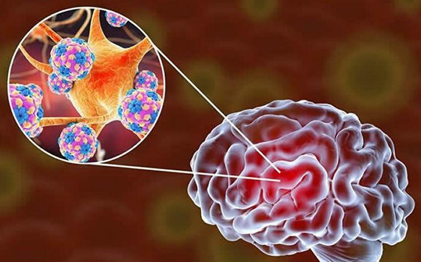 Ученые объяснили проблемы с мозгом у больных COVID-19