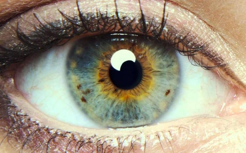 İnsanın öləcəyini gözlərdən bilmək olur