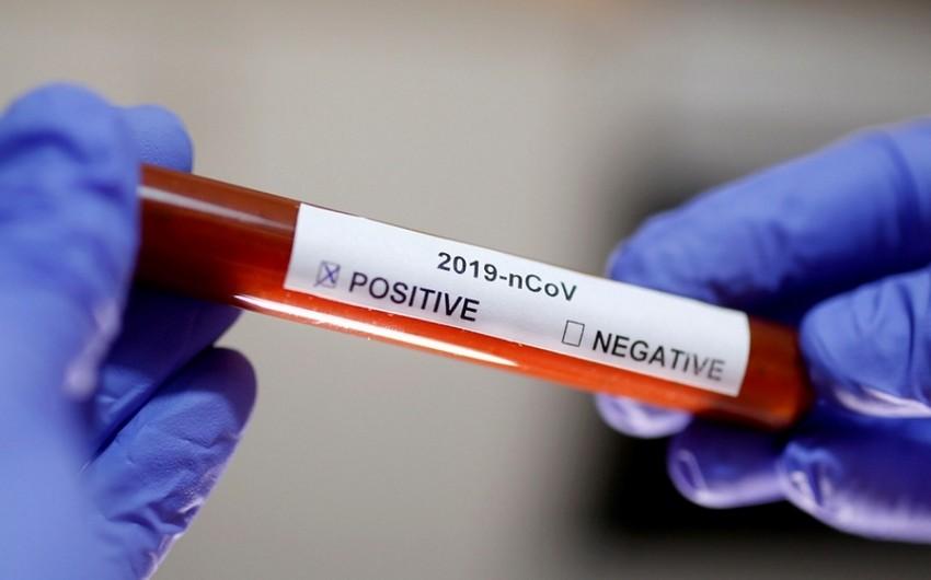 Azərbaycanda daha 1 850 nəfər koronavirusa yoluxub -