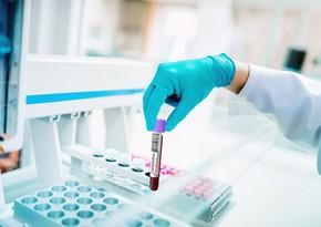 Azərbaycanda daha 2 206 nəfər koronavirusa yoluxub, 35 nəfər ölüb