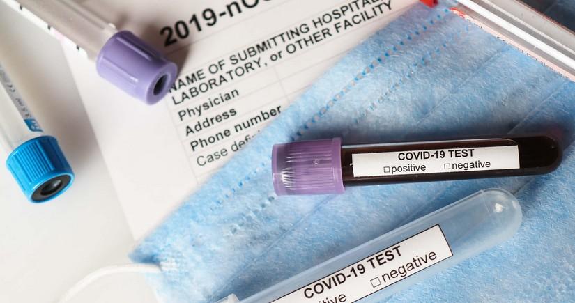 В Турции выявили о рекордном числе заболевших COVID-19 за сутки