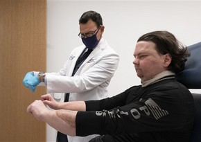Doctors announce world's first successful face and hand transplant