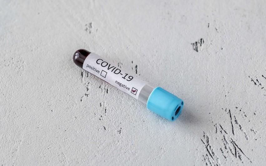 Azərbaycanda daha 55 nəfər koronavirusa yoluxub, ölən yoxdur