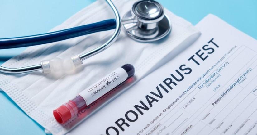 Operativ Qərargah: Daha 162nəfər koronavirusa yoluxub