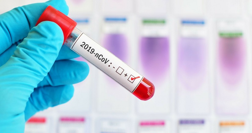 В Азербайджане 103новых случаязаражения коронавирусом