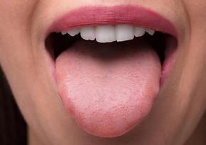Названы три признака рака, которые можно обнаружить на языке