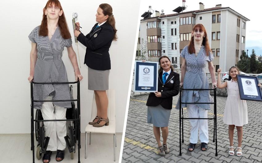 Türkiyə sakini dünyanın ən uzun qadını kimi rekorda imza atıb