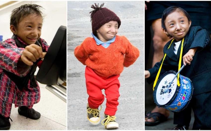 Dünyanın ən kiçik adamı vəfat edib - FOTO - VİDEO