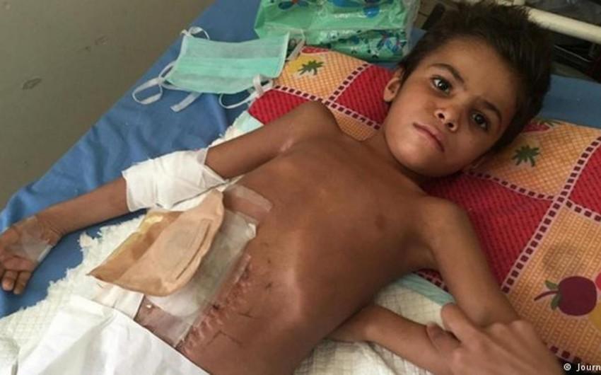 Dünyada münaqişə bölgələrində 8 min uşaq öldürülüb və yaralanıb