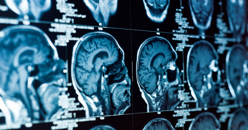 Scientists discover mysterious organ lurking in human head
