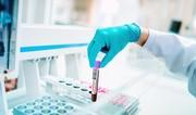 В Азербайджане выявлено 219 новых случаев заражения COVID-19