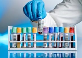 Azerbaijan reports 1,128 coronavirus cases, 21 deaths