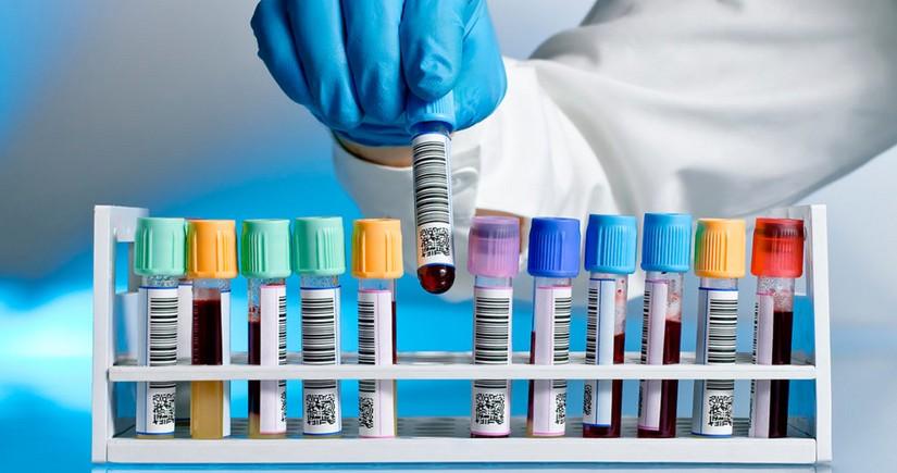 Azərbaycanda daha 1 128nəfər koronavirusa yoluxub, 21 nəfər ölüb