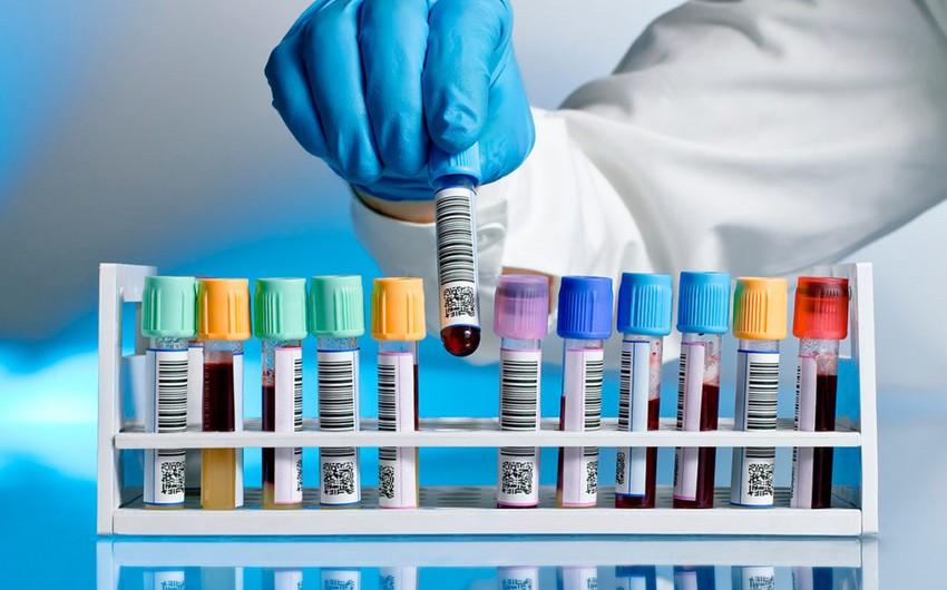 Azərbaycanda daha 1 128 nəfər koronavirusa yoluxub -