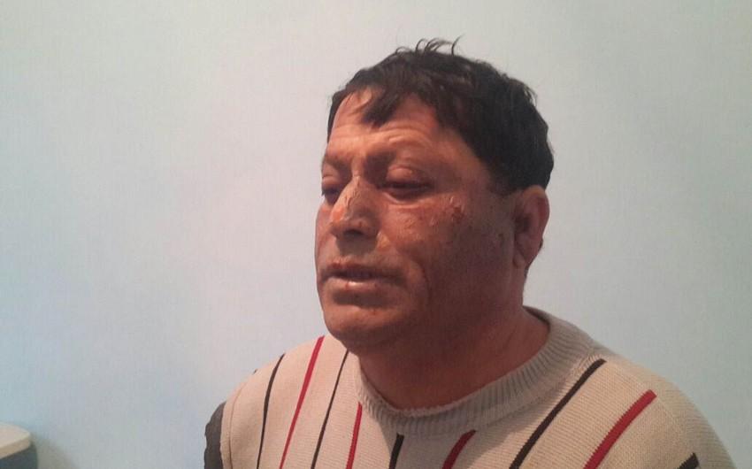 Abşeronda çörək sexində partlayış olub, 3 nəfər ağır yaralanıb - FOTO