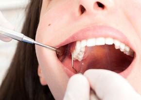 Koronavirusun daha bir fəsadı, dişlər tökülür