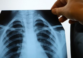 9 symptoms of lung cancer