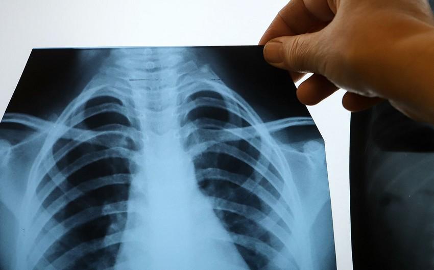 Названы девять симптомов рака легких