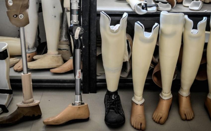 Əlilliyi olan şəxslər 6 878 reabilitasiya vasitəsi və protez-ortopedik məmulatla təmin olunublar