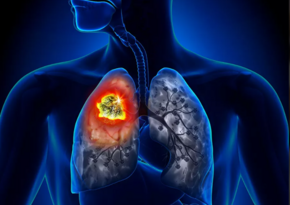 Названы четыре неочевидных симптома рака легких