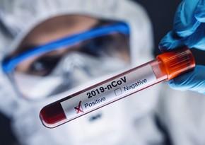 Azərbaycanda daha 542 nəfər koronavirusa yoluxub, 9 nəfər vəfat edib