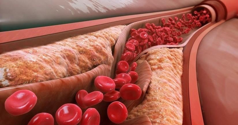 Названы признаки высокого уровня холестерина