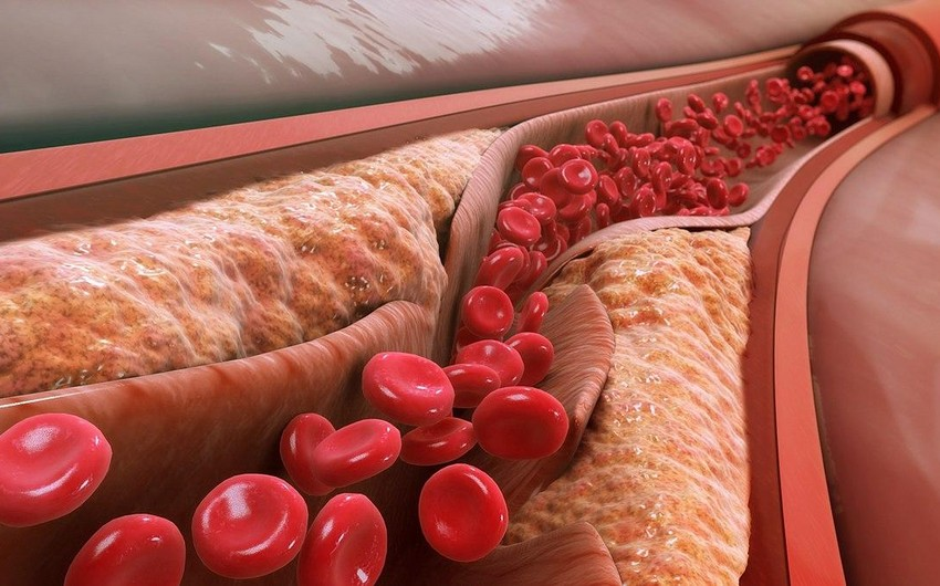 Signs of high cholesterol levels revealed