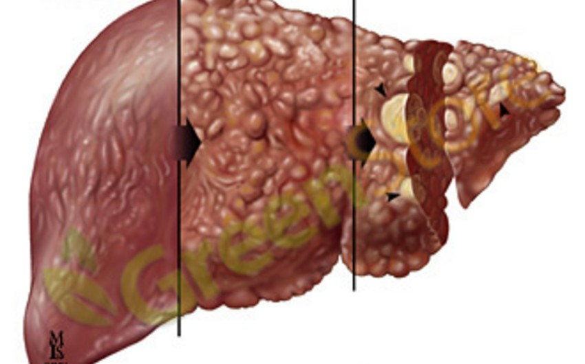 Hepatit B qaraciyər xərçənginə yol açır