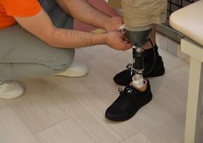 Agentlik qazilərin protez təminatında problem olması iddialarına cavab verdi